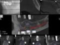 UK Implantatauswertung